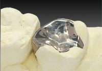 銀歯(保険適応銀歯)